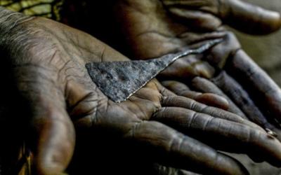 Sudão prepara-se para criminalizar mutilação genital feminina