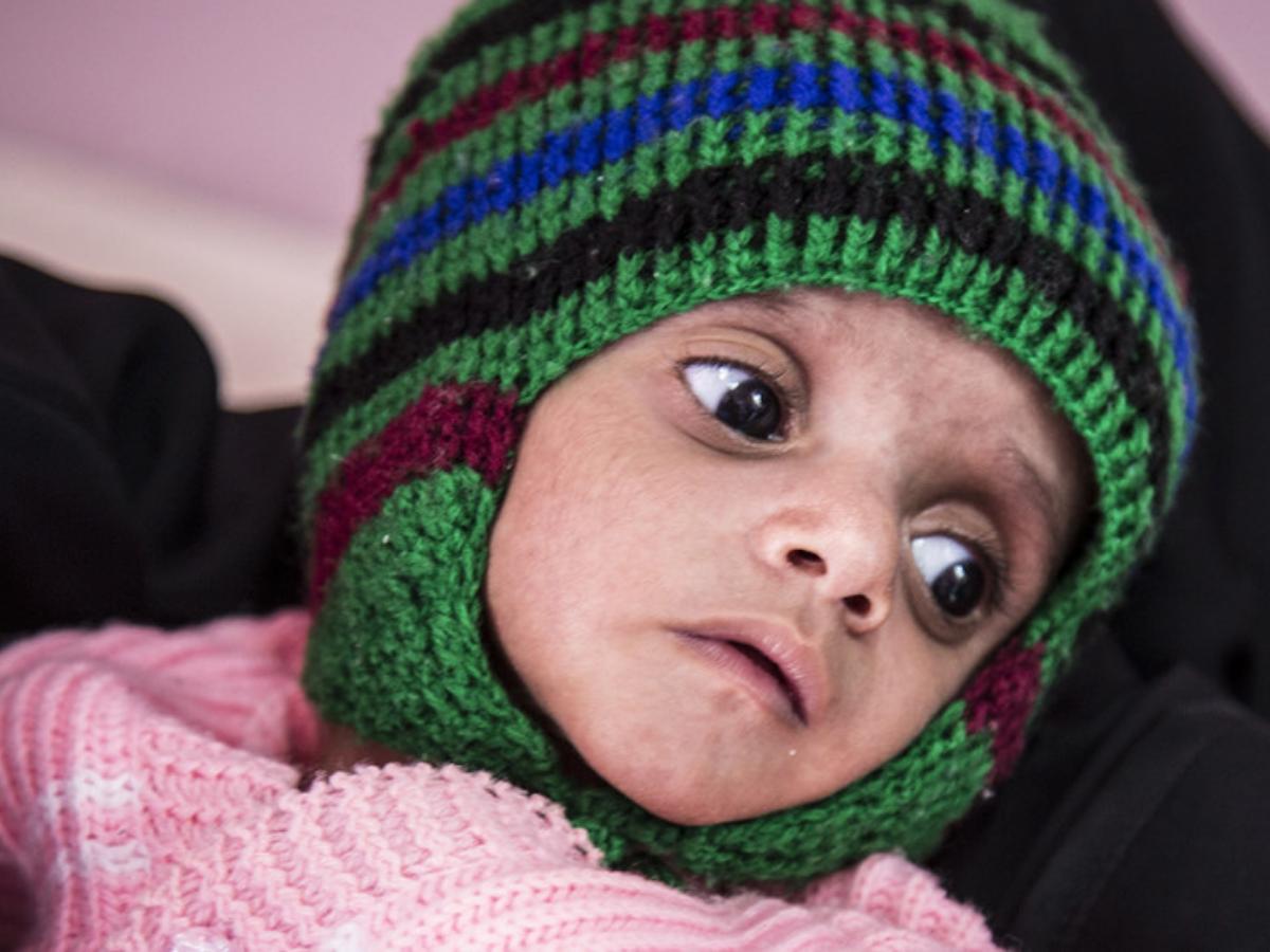 fome iémen, Foto_ PAM _ Marco Frattini