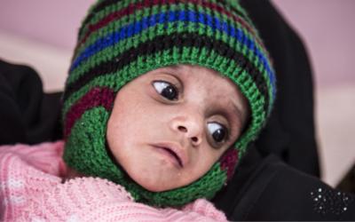 """Risco de fome atinge """"novos máximos a nível mundial"""", alerta ONU"""